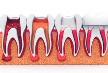 Ankara Endodonti Tedavisi