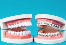 Ortodonti Tedavisi