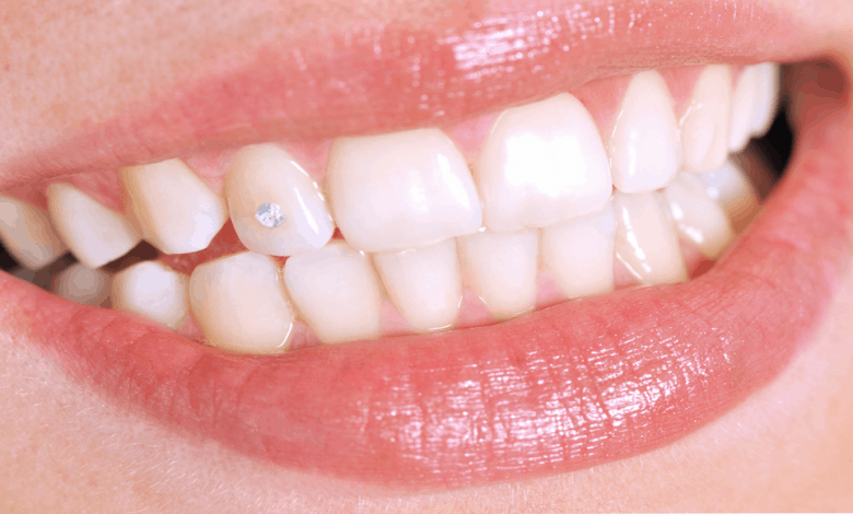 Diş Pırlantası