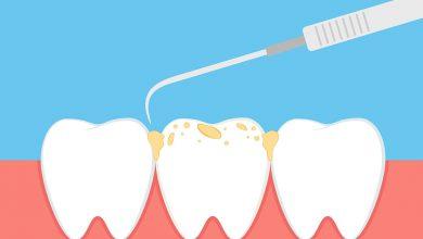 Diş Taşı Temizleme