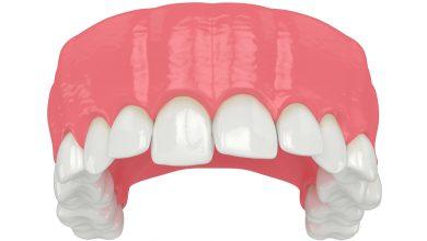 Eğri Diş Tedavisi