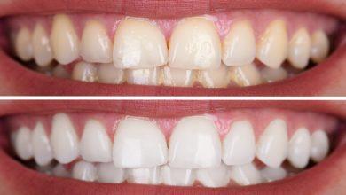 Kızılay Diş Beyazlatma